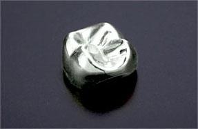 金パラジウム銀合金クラウン(銀歯)